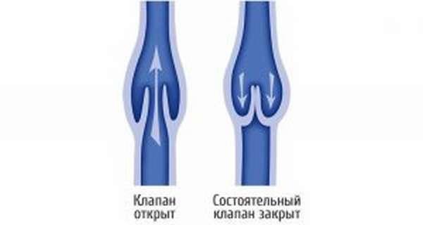 Эластичные бинты при варикозе