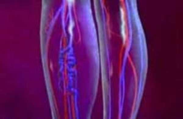 Лимфовенозная недостаточность ног