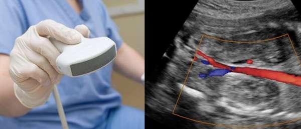 Дуплексное сканирование вен и артерий