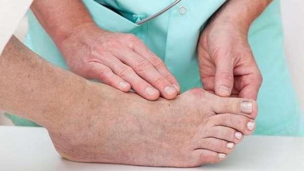 Закрытый перелом большого пальца ноги thumbnail