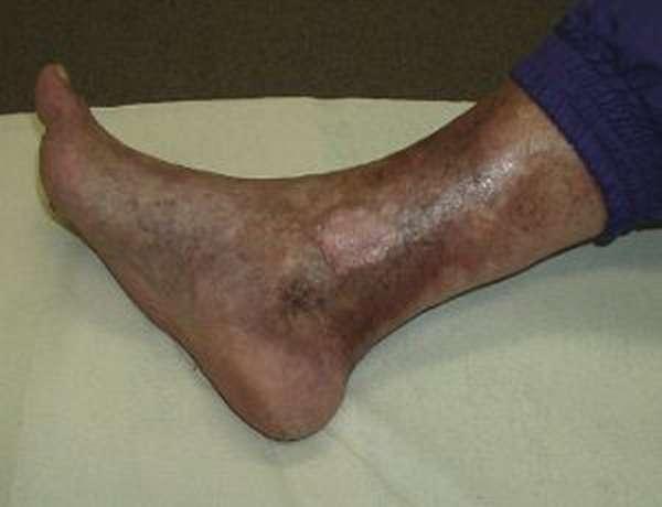 Мелкие сосуды на ногах