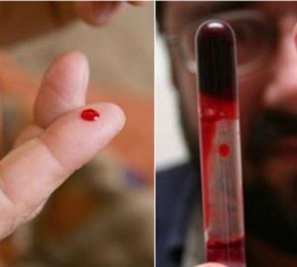 Диагностика и лечение тромбофилии