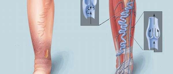 Классификация хронической венозной недостаточности