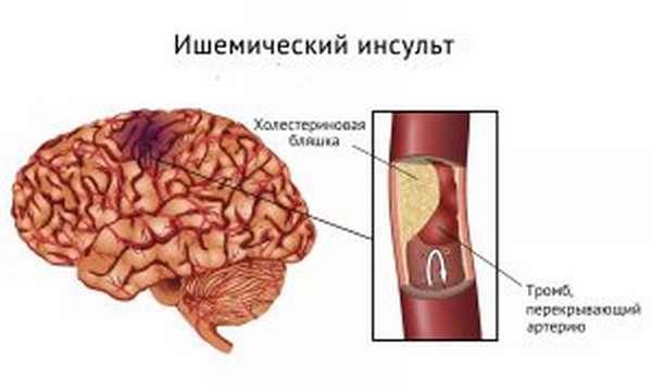 Симптомы и лечение проблем с сосудами