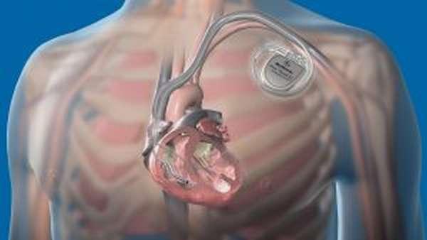 Алмаг для лечения варикоза