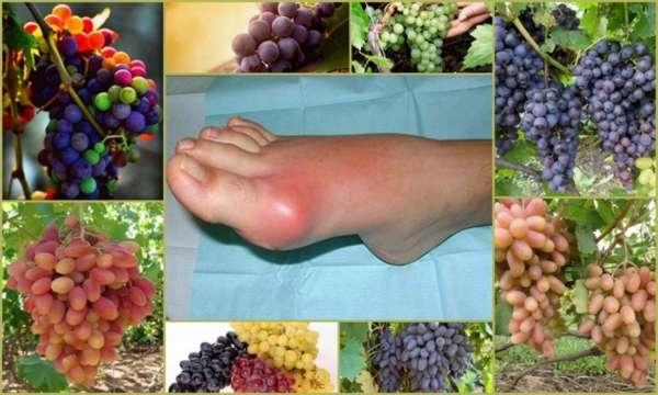 Виноград при подагре можно ли есть или нет