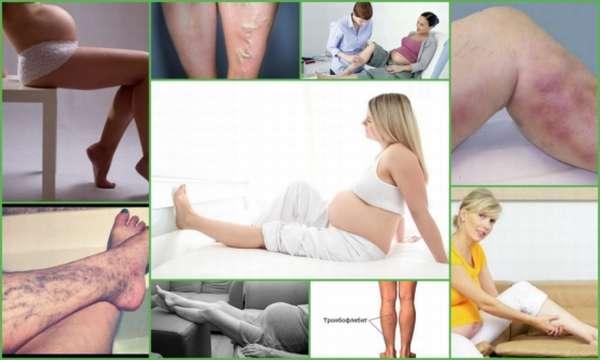 Чем опасен тромбофлебит при беременности можно ли рожать и как лечить патологию у будущих мам