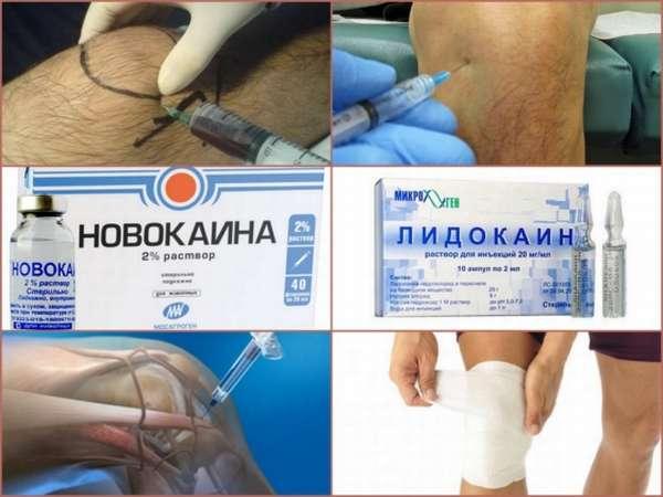 Отек ноги после артроскопии коленного сустава