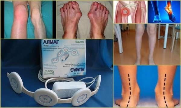 Алмаг при ушибе коленного сустава