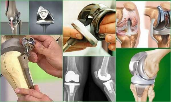 подобных протезирование коленного сустава картинки этим согласится она