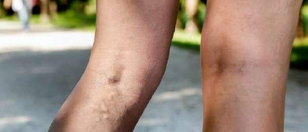 Флеботромбоз глубоких вен на ногах
