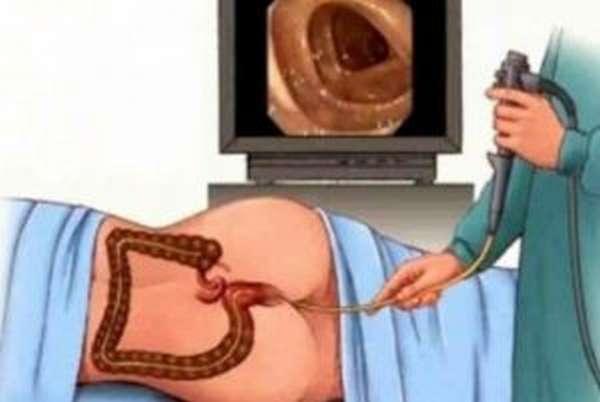 colonoscopy-soreness-after-anus-belle