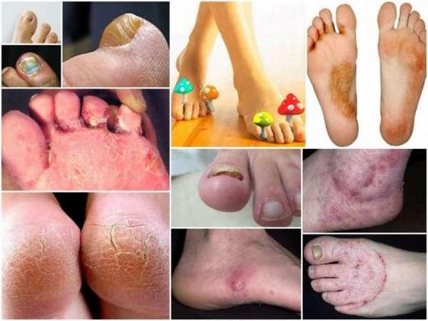 Ноги болезни картинки