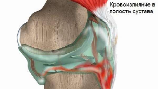 Как вылечить гемартроз коленного сустава