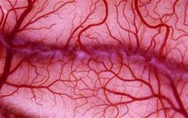 Что такое васкулит?