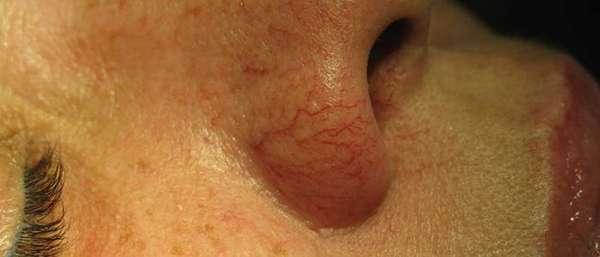 Капиллярная сетка на носу