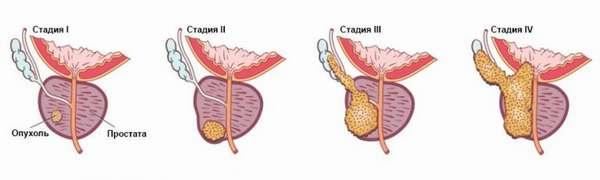 Секс при раке простаты: возможна и опасна ли половая жизнь при онкологии