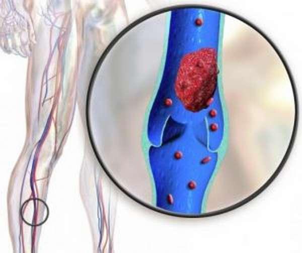 Оперативное лечение тромбофлебита