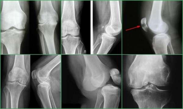 Рентгены коленных суставов фото