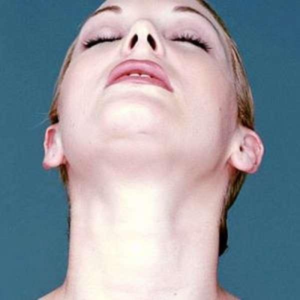 Сосудистые сетки на лице