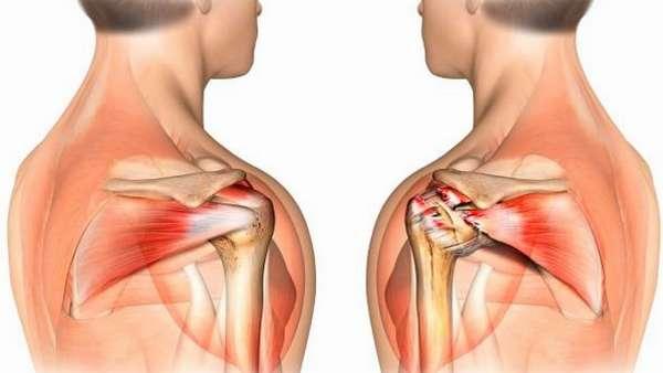 Упражнения при повреждении сухожилий плечевого сустава