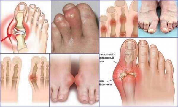 Это было ревматоидный артрит стоп ног фото ошибаетесь