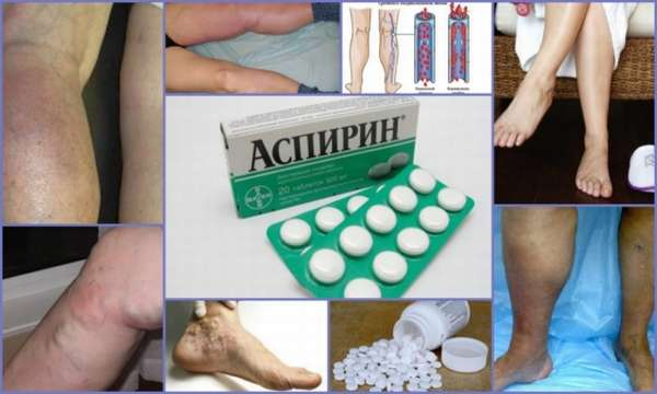 Аспирин при тромбозе против тромбов