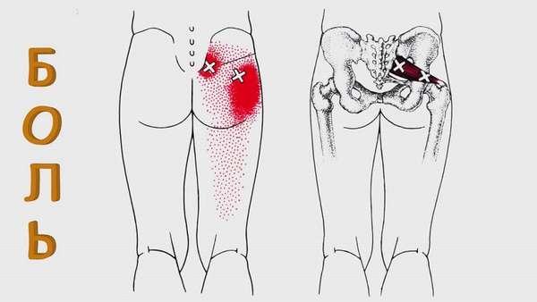 Мышечные боли в ягодице ноге