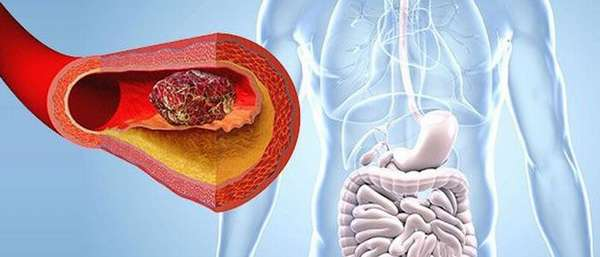 Причины и лечение тромбоза желудка