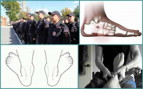 Берут ли в полицию с плоскостопием