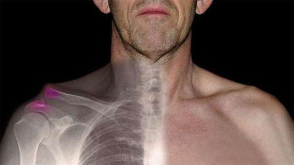 Боли в плечевом суставе после перелома ключицы