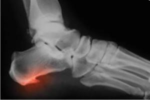 Лечение пяточной шпоры рентгеном