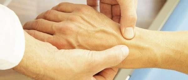 Болит вена на руке