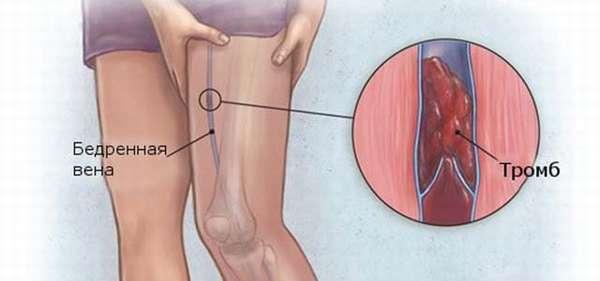 Симптомы и лечение илеофеморального тромбоза