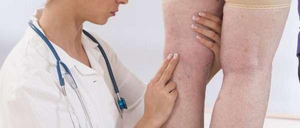 К какому врачу обращаться при варикозе ног?