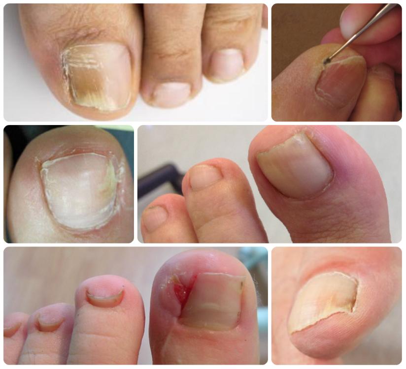 Мозоль под ногтем большого пальца на ноге