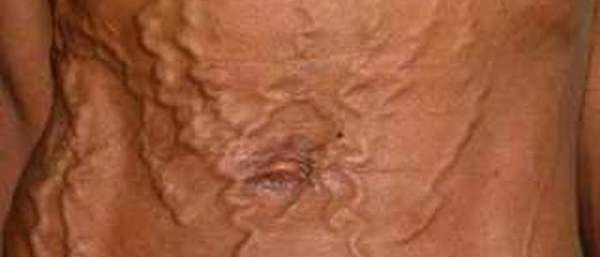 Варикозные вены на животе