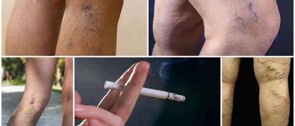 Курение и варикозное расширение вен