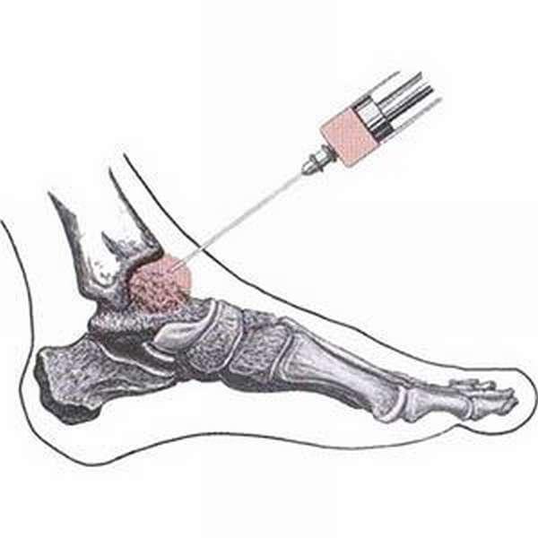 Крем от артрита голеностопного сустава фото