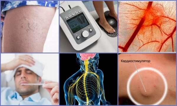 Аппараты от боли в коленях