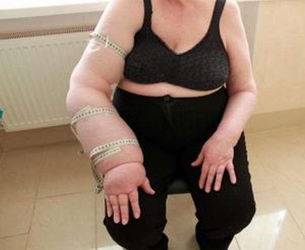 Что такое лимфостаз руки?