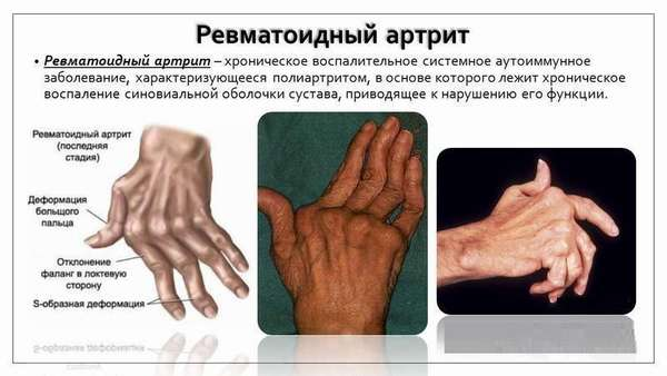 В россии больных ревматоидным артритом фото