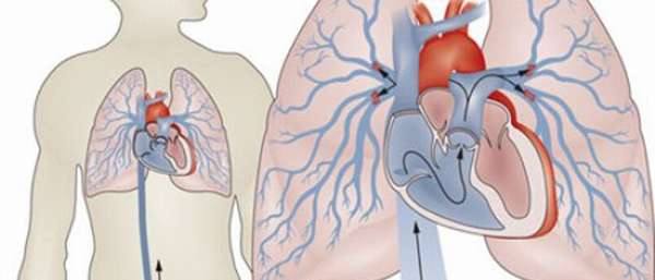 Эмболия легких