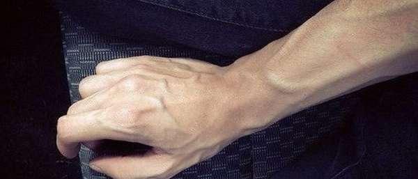 Почему сильно выделяются вены на руках