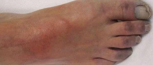 Симптомы и лечение облитерирующего эндартериита