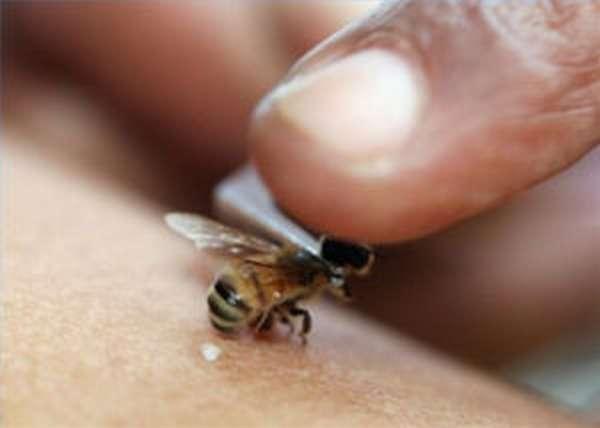 Пчелиный яд: польза и вред, что делать при укусе пчелы в домашних условиях
