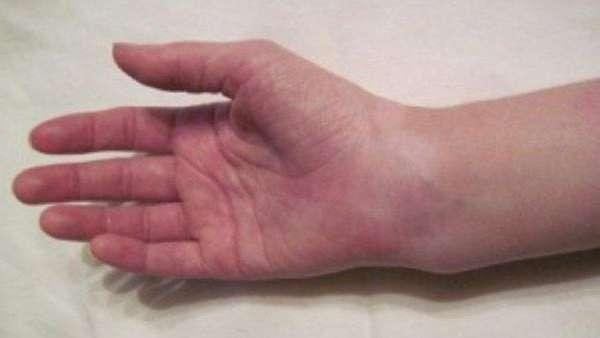 Перелом шиловидной кости кисти