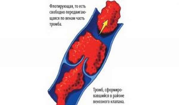 Тромбоз у беременных
