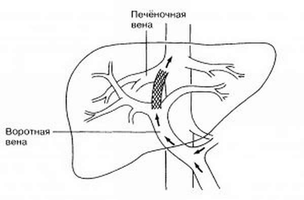 Варикоз вен желудка