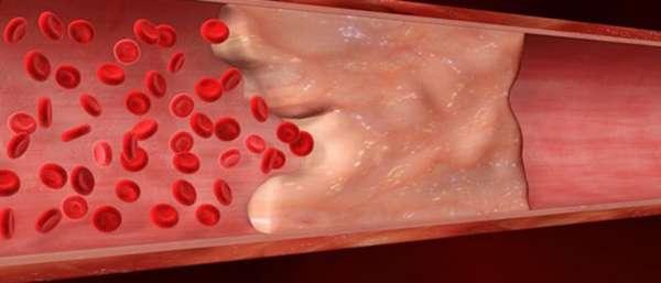 Тромбоэмболический синдром